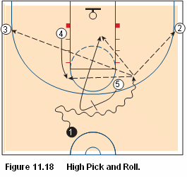 Basketball pick and roll offense - high pick and roll